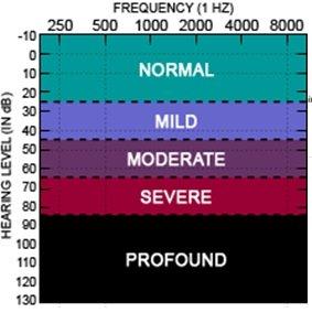 Gürültü Ölçümü | Gürültü Ölçümü