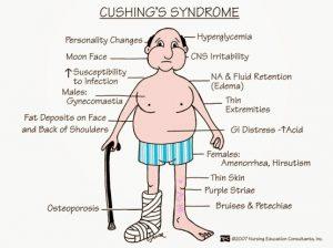 Cushing Sendromu