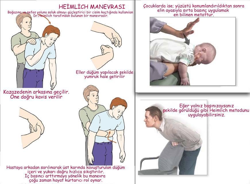 heimlich-manvrası