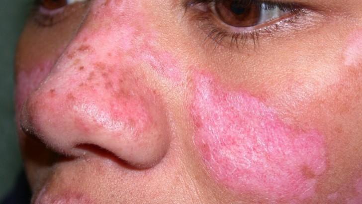 Lupus Hastalığı